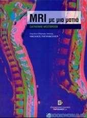 Μαγνητική τομογραφία (MRI) με μια ματια