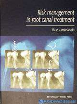 Risk Management in Root Canal Treatment
